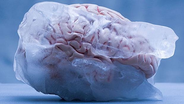 donmuş beyin