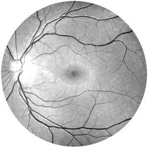retina_2