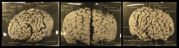 einstein'ın beyni